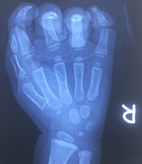 Em bé tổn thương bàn tay do kẹt vào dây curoa - ảnh 1