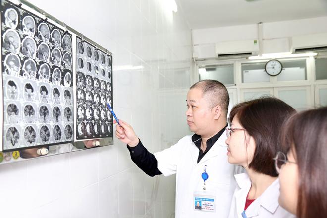 Bác sĩ Tuấn (cầm bút) đọc phim chụp cho bệnh nhân tai biến mạch máu não. Ảnh: Hương Nguyễn.