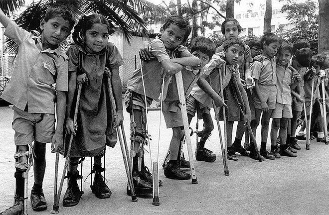 Trẻ em mắc bệnh bại liệt đầu thế kỷ 20. Ảnh: Global Polio Eradication Intiative