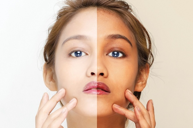 Da trắng là chuẩn mực cho cái đẹp của người dân châu Á. Ảnh: Shutterstock