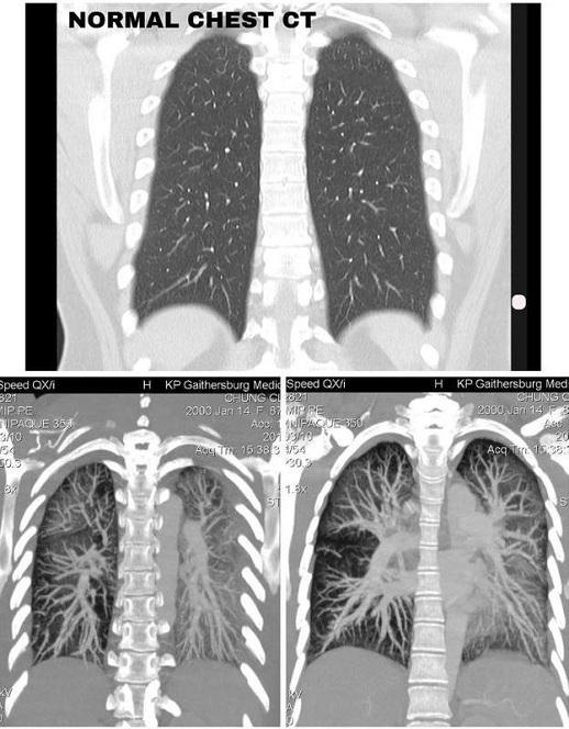 Lá phổi trắng đục do thuốc lá điện tử - ảnh 2