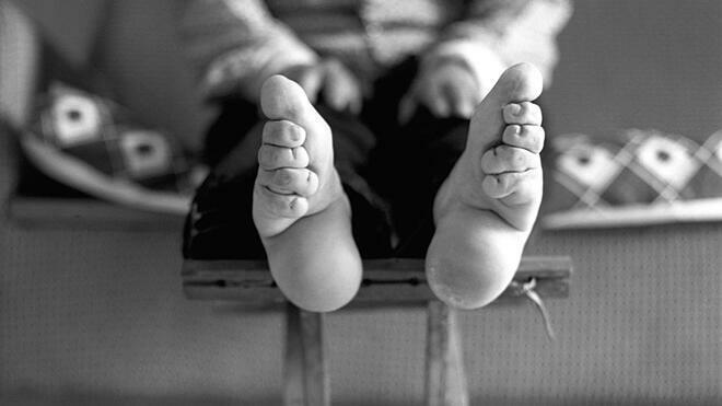 Bó chân gót sen có thể khiến chân hoại tử vì máu không lưu thông tới chân. Ảnh: Quartz
