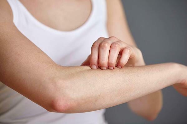 Các thay đổi trên da có thể là biểu hiện của các căn bệnh ung thư khác ngoài ung thư da. Ảnh: verywellhealth.com