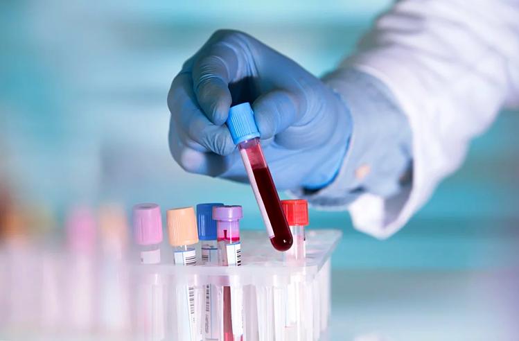 Nhóm máu nào sức đề kháng yếu nhất với Cô Vi ?
