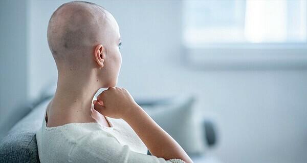 Rụng tóc là tác dụng phụ phổ biến nhất của điều trị ung thư. Ảnh: Myhealthyclick