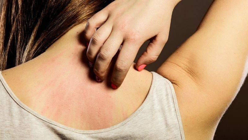 Người bệnh đang điều trị ung thư cũng có thể cảm thấy ngứa da.